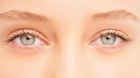 Mesotherapy Treatment for Eyebags