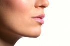 kybella® Treatment
